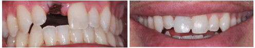 Dental Implants Before & After Montreal